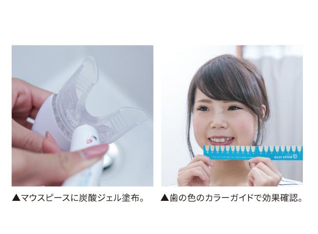 歯のホワイトニングキット